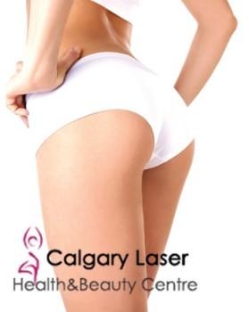 Calgary Laser and Beauty Center