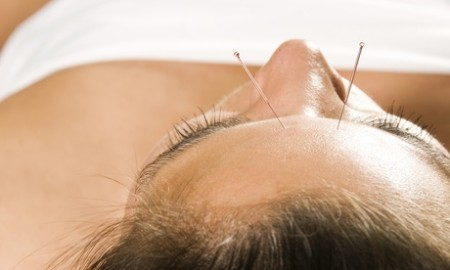 Yi Acupuncture & Massage